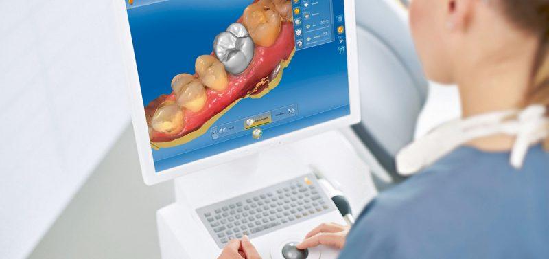 Cerec Implantologie Zahnersatz Deggendorf